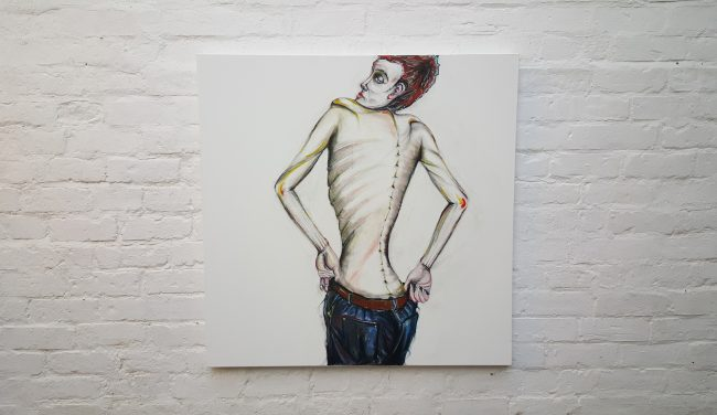 Eating Disorder: Male Model, by John Dunne.